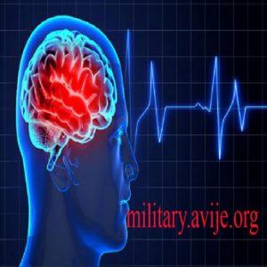 معافیت بیماری های جراحی مغز واعصاب به چه صورت است؟