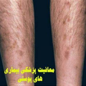 بافت زیر پوست