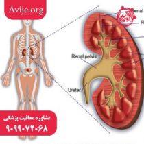 معافیت پزشکی گلومرولونفریت